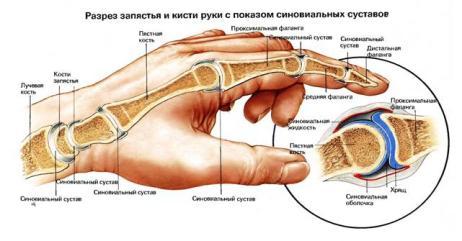 Что такое суставы на руке массаж вальгусная деформация коленного сустава в картинках